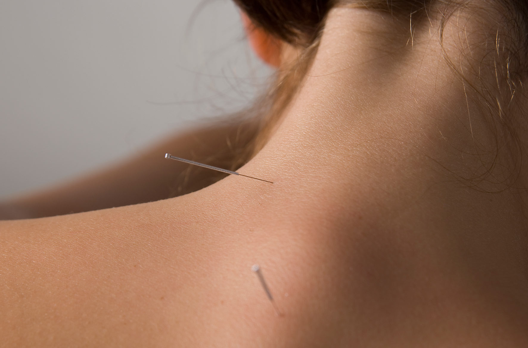 Acupuncture_back-2-normal